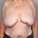 SWIM Breast Reconstrution, Dr. Cassileth, Case 1 Before