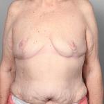 SWIM Breast Reconstrution, Dr. Cassileth, Case 1 After