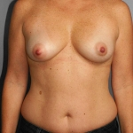 Liposuction, Dr. Cassileth, Case 5 Before