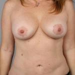 Liposuction, Dr. Cassileth, Case 5 After