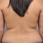 Liposuction, Dr. Cassileth, Case 11 Before