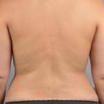 Liposuction, Dr. Cassileth, Case 11 After