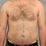Liposuction, Dr. Cassileth, Case 13 Before