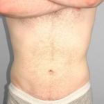 Liposuction, Dr. Cassileth, Case 13 After