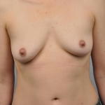 Breast Reconstruction with Fat Transfer, Dr. Cassileth, Case 23 Before