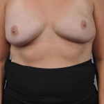 Breast Reconstruction with Fat Transfer, Dr. Cassileth, Case 24 After