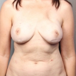 Breast Reconstruction with Fat Transfer, Dr. Cassileth, Case 5 Before