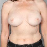 Breast Reconstruction with Fat Transfer, Dr. Cassileth, Case 5 After