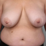 SWIM Breast Reconstruction, Dr. Cassileth, Case 2 Before