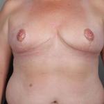SWIM Breast Reconstruction, Dr. Cassileth, Case 2 After