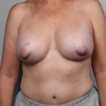 Breast Cancer Reconstruction with Fat Transfer, Dr. Cassileth, Case 41 Before