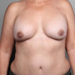 Breast Cancer Reconstruction with Fat Transfer, Dr. Cassileth, Case 41 After
