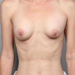 Breast Reconstruction Revision, Dr. Cassileth, Case 4 Before
