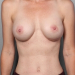 Breast Reconstruction Revision, Dr. Cassileth, Case 4 After