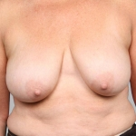 Breast Lift, Dr. Cassileth, Case 7 Before