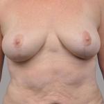 Breast Lift, Dr. Cassileth, Case 7 After