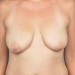 Breast Lift, Dr. Cassileth, Case 5 Before