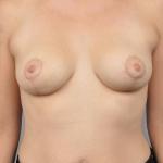 Breast Lift, Dr. Cassileth, Case 5 After