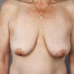 Breast Lift, Dr. Cassileth, Case 2 Before