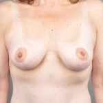 Breast Lift, Dr. Cassileth, Case 2 After
