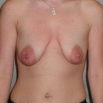 Breast Lift, Dr. Cassileth, Case 4 Before