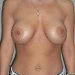 Breast Lift, Dr. Cassileth, Case 4 After