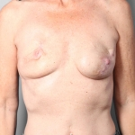 Breast Reconstruction Revision, Dr. Killeen, Case 5 Before