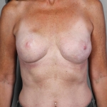 Breast Reconstruction Revision, Dr. Killeen, Case 5 After