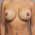 Breast Implant Revision, Dr. Cassileth, Case 19 Before