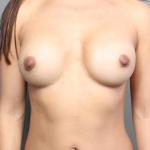 Breast Implant Revision, Dr. Cassileth, Case 19 After
