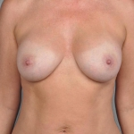 Breast Implant Revision, Dr. Cassileth, Case 17 After
