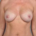 Breast Implant Revision, Dr. Cassileth, Case 17 After