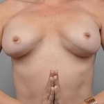 Breast Implant Revision, Dr. Cassileth, Case 8 Before