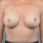 Breast Implant Revision, Dr. Cassileth, Case 8 After