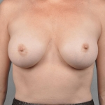 Breast Implant Revision, Dr. Cassileth, Case 8 After