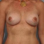 Breast Implant Revision, Dr. Cassileth, Case 3 After