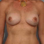 Breast Implant Revision, Dr. Cassileth, Case 3 After