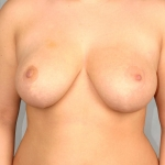 Breast Reduction, Dr. Cassileth, Case 1 After