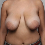 Breast Reduction, Dr. Killeen, Case 22 Before
