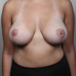 Breast Reduction, Dr. Killeen, Case 22 After