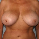 Breast Reduction, Dr. Cassileth, Case 3 Before