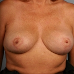 Breast Reduction, Dr. Cassileth, Case 3 After