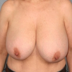 Breast Reduction, Dr. Cassileth, Case 5 Before