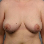 Breast Reduction, Dr. Cassileth, Case 6 After