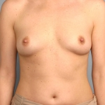 Breast Augmentation, Dr. Cassileth, Case 1 Before