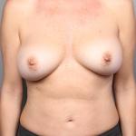 Breast Augmentation, Dr. Cassileth, Case 1 After