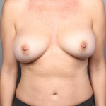 Breast Augmentation, Dr. Cassileth, Case 1 After