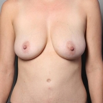 Breast Augmentation, Dr. Killeen, Case 10 Before