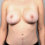 Breast Augmentation, Dr. Killeen, Case 10 After