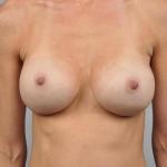 Breast Augmentation, Dr. Cassileth, Case 14 After